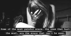 Scars